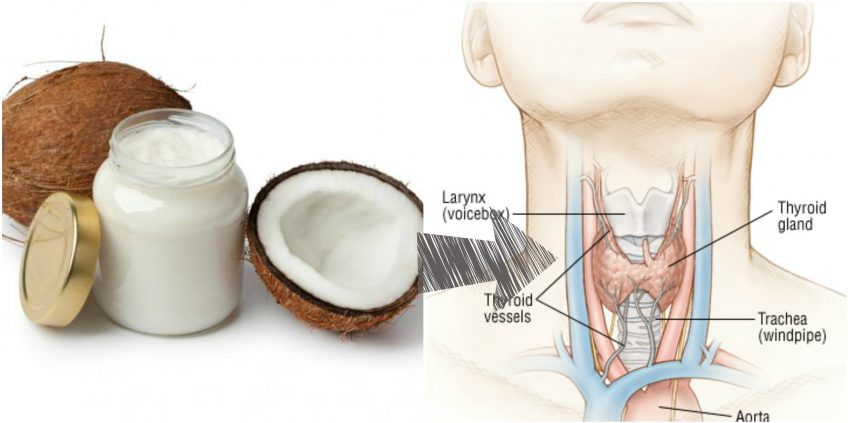 Coconut Oil Benefits for Hypothyroidism